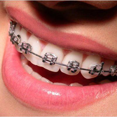 Orthodontie (Kieferorthopädie)